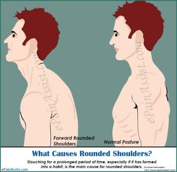 what-causes-rounded-shoulders