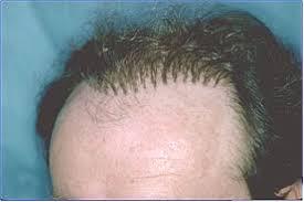 hair plugs